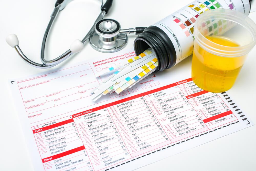 ginecologia-exame-de-urina
