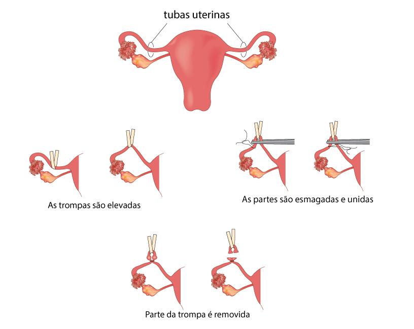Laquedura---Ginecologia