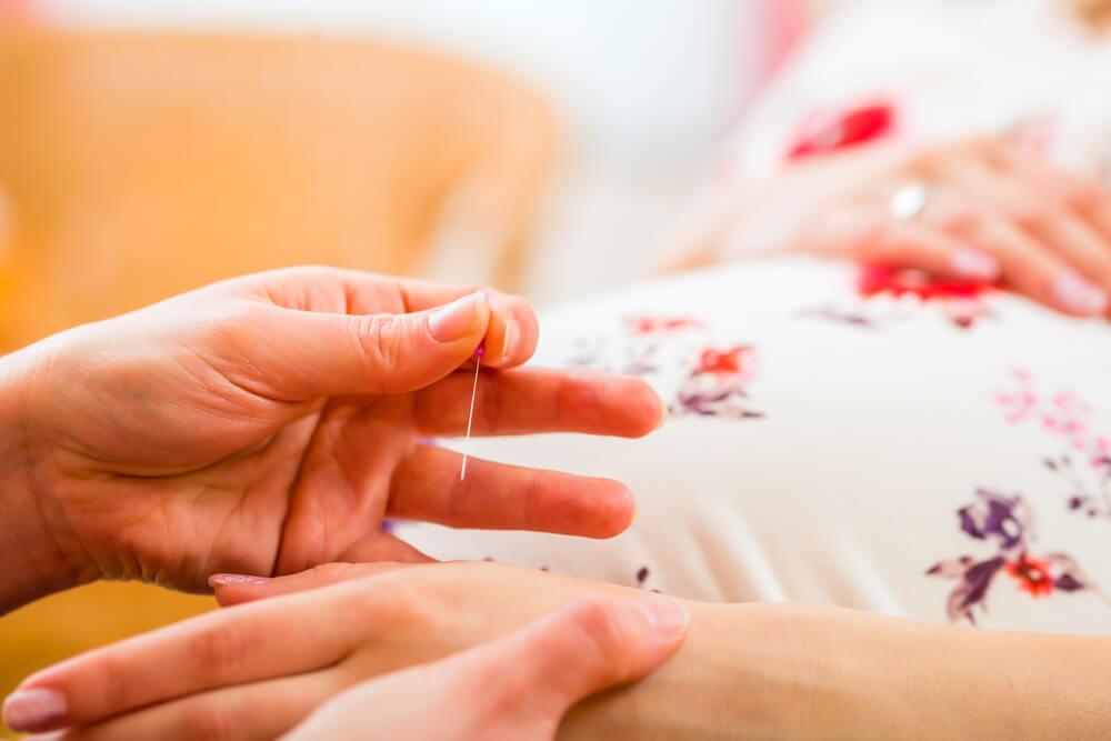 obstetras recomendam acupuntura