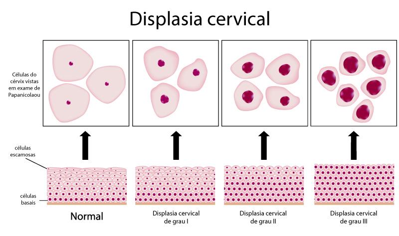 displasia-cervical