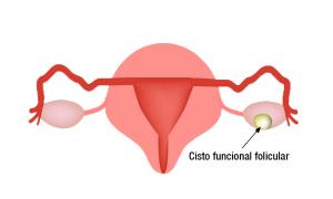 cisto funcional folicular