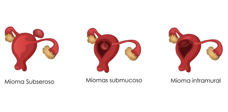 Tipos de mioma uterino