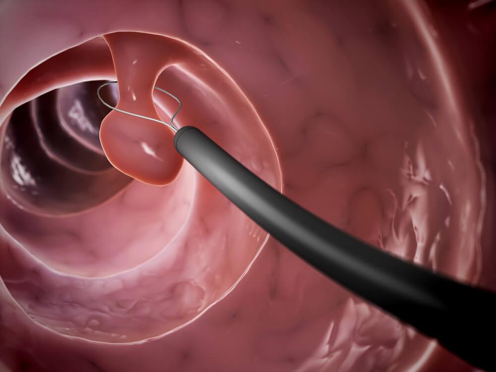principais sintomas dos pólipos uterinos