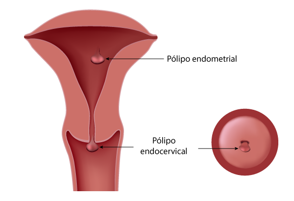 Resultado de imagem para polipo endometrial tipos