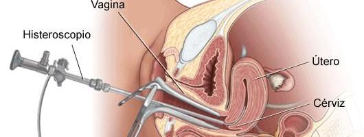 Quando a histeroscopia ginecológica é indicada