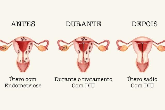 DIU trata a endometriose