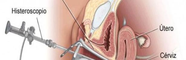 histeroscopia diagnóstica