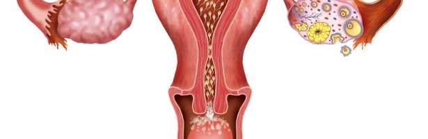 cisto roto ovariano